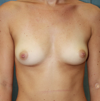 Breast Augmentation before 1687311
