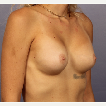 18-24 year old woman treated with Breast Augmentation after 3494790