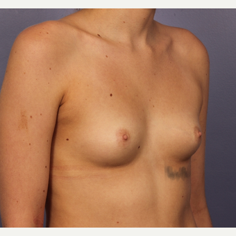 18-24 year old woman treated with Breast Augmentation before 3494790
