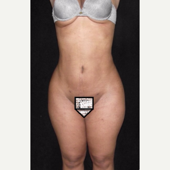 360 liposuction after 3647160