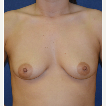 18-24 year old woman treated with Breast Augmentation before 3092558