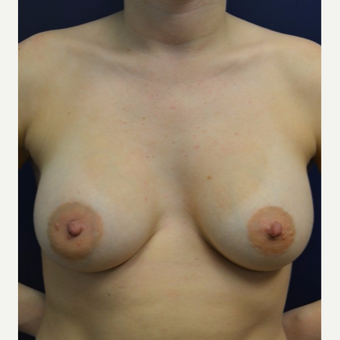 18-24 year old woman treated with Breast Augmentation after 3092558