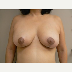 Breast Lift after 3373421