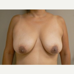 Breast Lift before 3373421