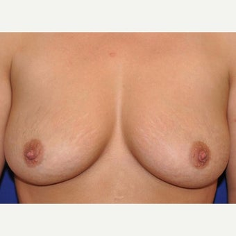 36 Year Old Female Post Nipple Sparing Mastectomy before 2222345