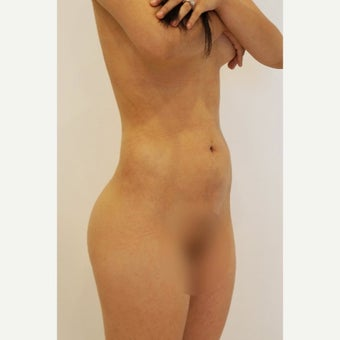 18-24 year old woman treated with Brazilian Butt Lift after 2078812