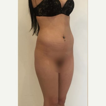 18-24 year old woman treated with Brazilian Butt Lift before 2078812