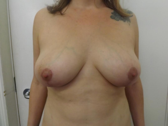 Breast Reduction after 1292849