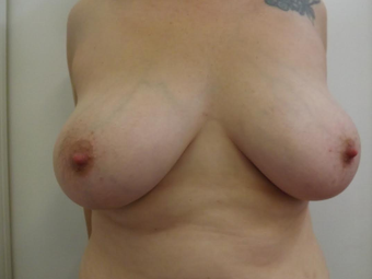 Breast Reduction before 1292849