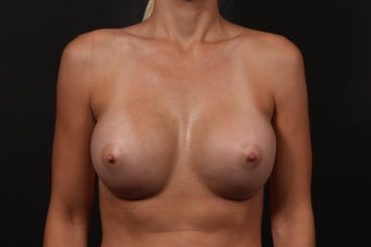 Breast Augmentation after 354396