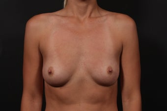 Breast Augmentation before 354396