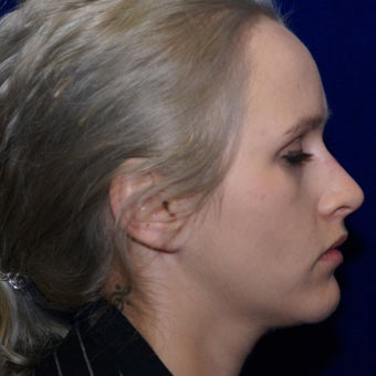 25-34 year old woman treated with Non-Surgical Rhinoplasty