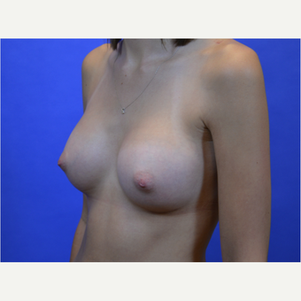 35-44 year old woman treated with Breast Augmentation after 3579944