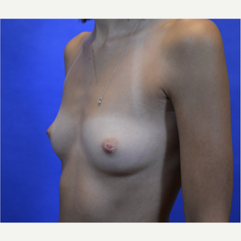35-44 year old woman treated with Breast Augmentation before 3579944