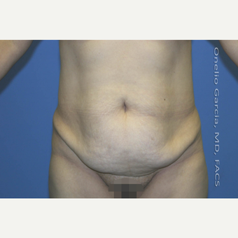 35-44 year old woman treated with Tummy Tuck before 2999028