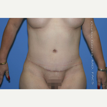 35-44 year old woman treated with Tummy Tuck after 2999028