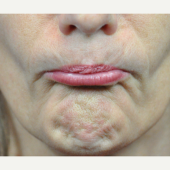45-54 year old woman treated with Botox after 3776462