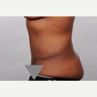 No Drain Tummy Tuck after 2527264