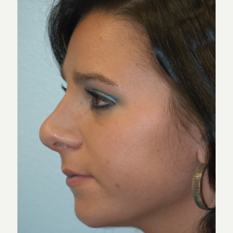 18-24 year old woman treated with Rhinoplasty after 3621254