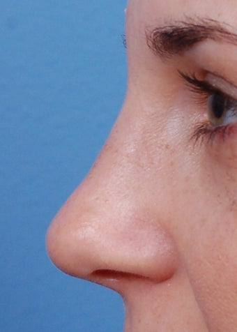 25-34 year old woman treated with Rhinoplasty after 2106930