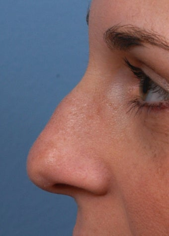 25-34 year old woman treated with Rhinoplasty before 2106930