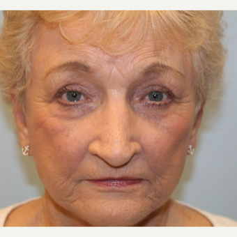 75 and up year old woman treated with Facelift after 2706545