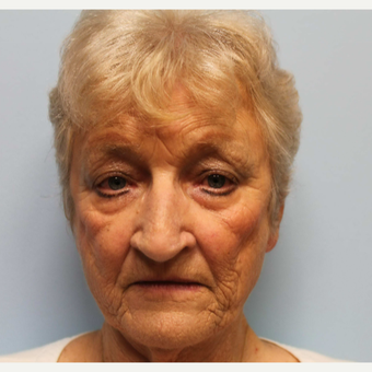 75 and up year old woman treated with Facelift before 2706545