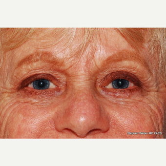 55-64 year old woman treated with Eyelid Surgery after 3624462