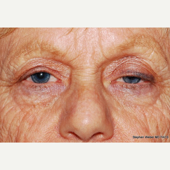 55-64 year old woman treated with Eyelid Surgery before 3624462