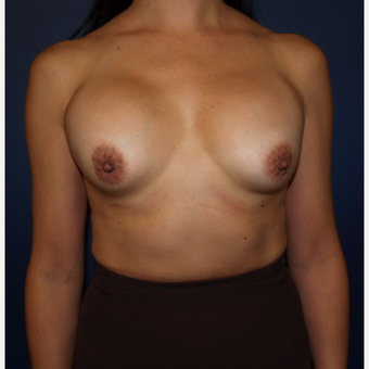 35-44 year old woman treated with Breast Implant Revision before 3286130