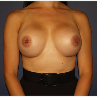 35-44 year old woman treated with Breast Implant Revision after 3286130