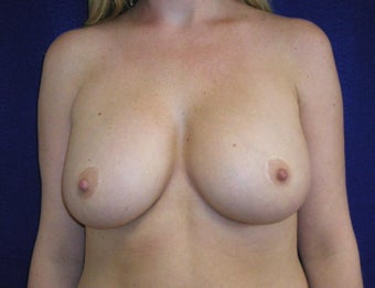 32 Year Old Female, Breast Implant Removal, No Breast Lift  before 1316937