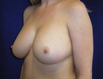 32 Year Old Female, Breast Implant Removal, No Breast Lift  1316937