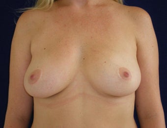32 Year Old Female, Breast Implant Removal, No Breast Lift  after 1316937