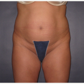 35-44 year old woman treated with Tummy Tuck before 3448229