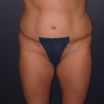 35-44 year old woman treated with Tummy Tuck after 3448229