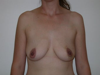 Breast reconstruction with expander and implant before 83644