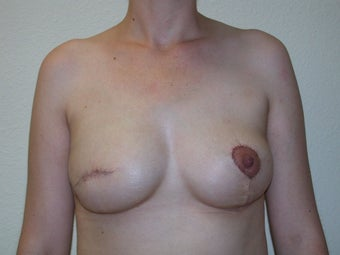 Breast reconstruction with expander and implant after 83644
