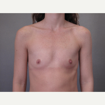 25-34 year old woman treated with Breast Augmentation before 3103324