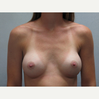 25-34 year old woman treated with Breast Augmentation after 3103324