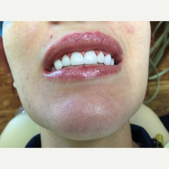 25-34 year old woman treated with Dental Crown after 2092911