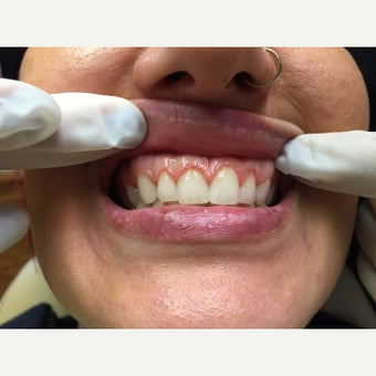 25-34 year old woman treated with Dental Crown before 2092911