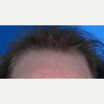 45-54 year old man treated with Hair Transplant before 3065544