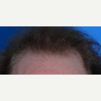 45-54 year old man treated with Hair Transplant after 3065544
