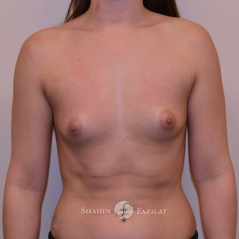 25-34 year old woman treated with Breast Augmentation before 3702638