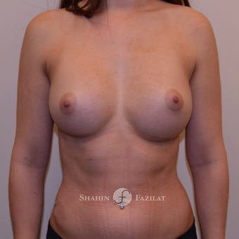 25-34 year old woman treated with Breast Augmentation after 3702638