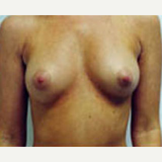 18-24 year old woman treated with Breast Augmentation before 3788574