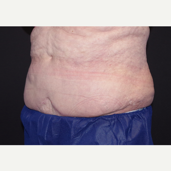 65-74 year old woman treated with Liposuction before 3439510