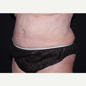 65-74 year old woman treated with Liposuction after 3439510