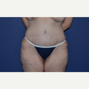 54 year old woman treated with Tummy Tuck after 3283150